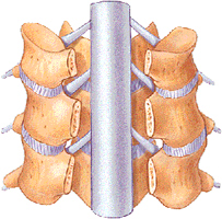 cervical-laminectomy-image[1]